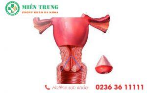 Dấu hiệu nhận biết bệnh phì đại cổ tử cung ở nữ giới