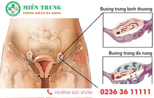 Điều trị đa nang buồng trứng hiệu quả