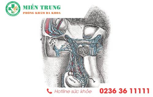 Phương pháp trị giãn tĩnh mạch thừng tinh cho nam giới