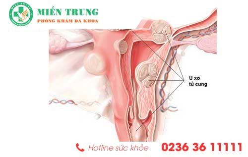 Triệu chứng bệnh u xơ tử cung ở nữ giới