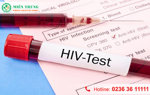 [Đà Nẵng] Xét nghiệm máu có phát hiện HIV được không?